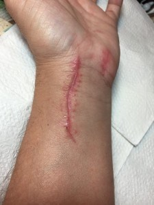 Scar after surgery